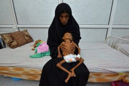 Saudi Blockade Hindering Aid Delivery to Starving Yemenis: UN